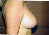 Photo - Breast Reduction - OLD - MORE INFO - 1d - AFTER SURGERY.jpg