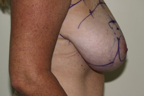 Photo - Breast Reduction Surgery Sydney - 1a - BEFORE SURGERY PIC