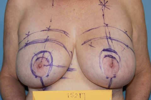 Photo - Breast Reduction Surgery Sydney NEW - 3a BEFORE.JPG