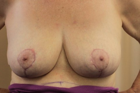 Photo - Breast Reduction Surgery Sydney NEW - 3b AFTER.JPG