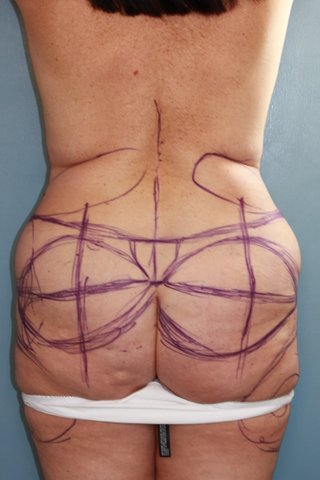 Photo - Buttocks Lift Surgery Sydney - 1a - BEFORE SURGERY PIC - SMALL - 3 a before body lift.JPG