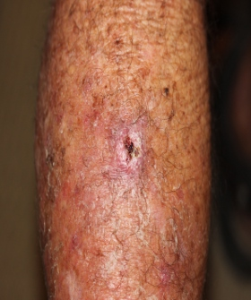 Photo - Cancer - Squamous Cell Carcenoma before pic 2