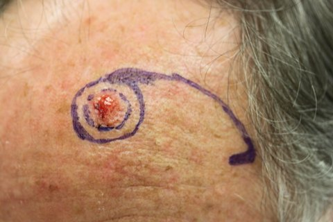 Photo - Detailed Skin Cancer Information - Basal Cell Cancer - 3