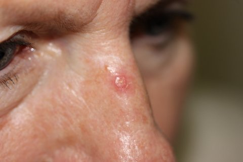 Photo - Detailed Skin Cancer Information - Basal Cell Cancer - 4 - IMG_1736.JPG