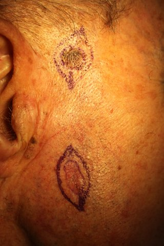 Photo - Detailed Skin Cancer Information - Melenoma - 1