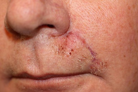 Photo - Detailed Skin Cancer Information - Skin Flaps - 4