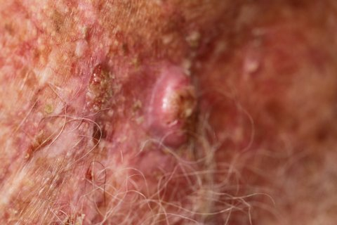 Photo - Detailed Skin Cancer Information - Squamous Cell Cancer - 1