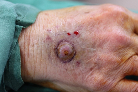 Photo - Detailed Squamous Cell Cancer 9 - 2949.JPG