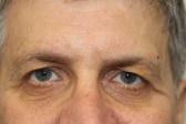 Photo - Direct Incision Browlift 1a.JPG