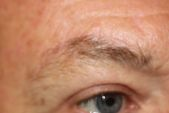 Photo - Direct Incision Browlift 1d.JPG