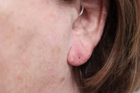 Photo - Ear Lobe Surgery 2c - AFTER.JPG