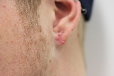 Photo - Ear Lobe Sydney - 1b - AFTER SURGERY PIC