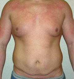 Photo - Gynecomastia Man Boobs Surgery Sydney - 1a - BEFORE SURGERY PIC - SMALL - SAMPLE ONLY.jpg