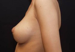 Photo - Inverted Nipple Repair Surgery Sydney - 1a - BEFORE SURGERY PIC - SMALL - SAMPLE ONLY.jpg