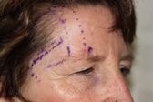 Photo - Lateral Brow Lift - DETAILED INFORMATION - BEFORE 1c