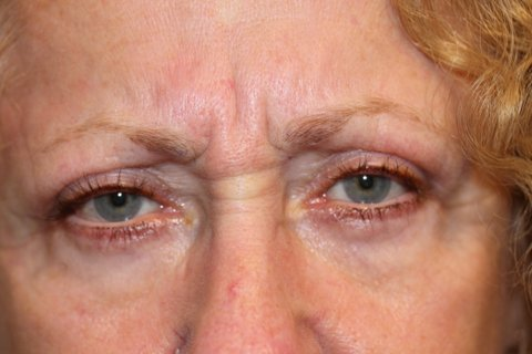 Photo - Medial Brow Lift Sydney - 1a SMALL - BEFORE SURGERY PIC - IMG_0698.JPG