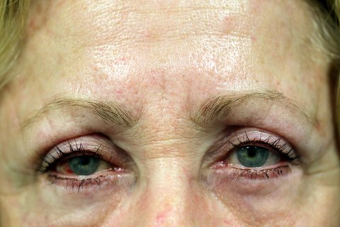 Photo - Medial Brow Lift Sydney - 1b SMALL - AFTER SURGERY PIC