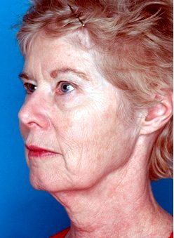 Photo - Medial Brow Lift Sydney - 2a - BEFORE SURGERY PIC