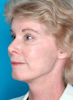 Photo - Medial Brow Lift Sydney - 2b - AFTER SURGERY PIC - SMALL - SAMPLE ONLY.jpg