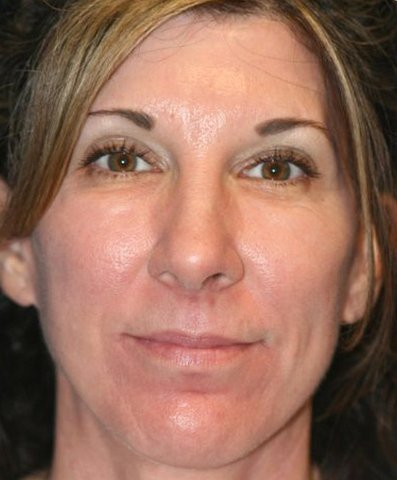 Photo - Mid Face Lift Sydney - 1a - AFTER SURGERY PIC - SMALL - SAMPLE ONLY.jpg