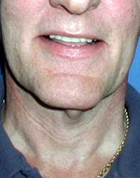 Photo - Neck Lift Sirgeru Sydney - 1a - BEFORE SURGERY PIC - SMALL - SAMPLE ONLY.jpg