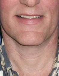 Photo - Neck Lift Surgery Sydney - 1b - AFTER SURGERY PIC - SMALL - SAMPLE ONLY.jpg