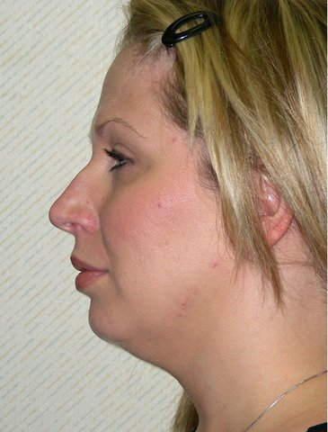 Photo - Neck Lift Surgery Sydney - 2a - BEFORE SURGERY PIC - SMALL - SAMPLE ONLY.jpg