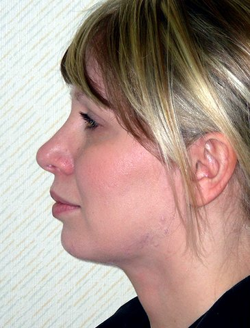 Photo - Neck Lift Surgery Sydney - 2b - AFTER SURGERY PIC - SMALL - SAMPLE ONLY.jpg