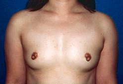 Photo - Nipple Reduction Surgery Sydney - 1a - BEFORE SURGERY PIC - SMALL - SAMPLE ONLY.jpg