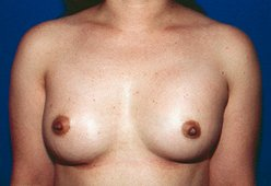 Photo - Nipple Reduction Surgery Sydney - 1b - AFTER SURGERY PIC - SMALL - SAMPLE ONLY.jpg