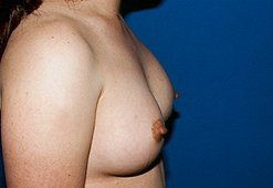 Photo - Nipple Reduction Surgery Sydney - 2b - AFTER SURGERY PIC - SMALL - SAMPLE ONLY.jpg