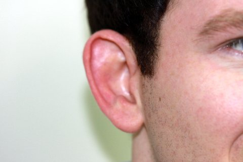 Photo - Otoplasty Bat Ears Sydney - 1d - AFTER SURGERY PIC - SMALL - Bat Ears Otoplasty 2b-After.JPG