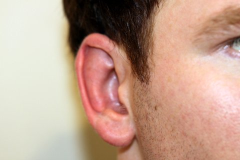 Photo - Otoplasty Bat Ears Sydney - 1c - BEFORE SURGERY PIC - SMALL - Bat Ears Otoplasty 2a-Before.JPG