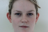 Photo - Otoplasty DETAILED INFORMATION - OLD - 1a BEFORE - Young Woman.JPG