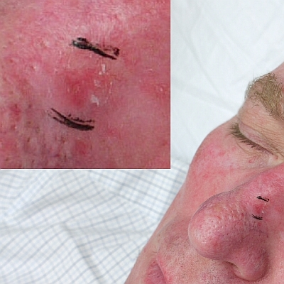 Photo - Skin Cancer - Superficial Multifocal BCC Sydney 2 - SAMPLE ONLY.jpg
