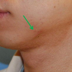 Photo - Skin Rejuvenation - Minor Surgery 1b - Mole Skin Lesion - Sample Only.jpg