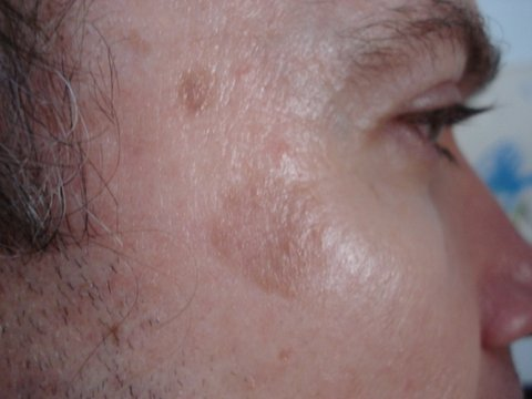 Photo - Skin Rejuvenation - Minor Surgery 2 - Seborrheic Keratosis Legion - SAMPLE ONLY.jpg