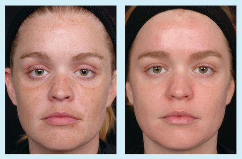 Photo - Skin Rejuvenation - Obagi Skin Cream Sydney - 2 - SMALL - SAMPLE ONLY.jpg