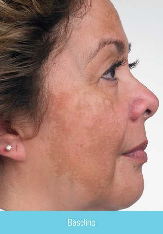Photo - Skin Rejuvenation - Obagi Skin Cream Sydney - 3a - SMALL - NU-DERM_RT_baseline.jpg