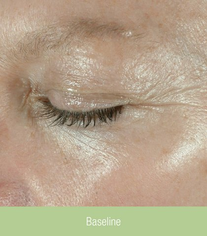 Photo - Skin Rejuvenation - Obagi Skin Cream Sydney - 5a - SMALL - ELASTI_50_baseline.jpg