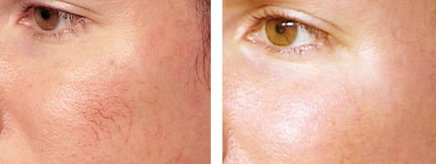 Photo - Skin Rejuvination - Facial Spider Vein Removal 1 - SAMPLE ONLY.jpg