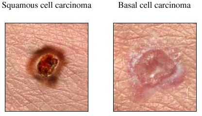 Photo - Squamous Cell Carinoma v Basal Cell - 1 - SAMPLE ONLY.jpg