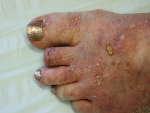 Photo - Squamous Cell Skin Cancer Surgery - Post Operation.JPG