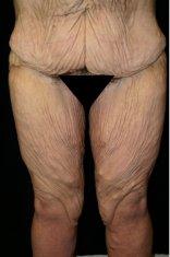 Photo - Thigh Lift Lower Surgery Sydney - 1a - BEFORE SURGERY PIC - SMALL - SAMPLE ONLY.jpg