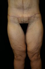 Photo - Thigh Lift Lower Surgery Sydney - 1b - AFTER SURGERY PIC - SMALL - SAMPLE ONLY.jpg