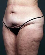 Photo - Thigh Lift Outer Surgery Sydney - 1a - BEFORE SURGERY PIC - SMALL - SAMPLE ONLY.JPG