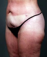 Photo - Thigh Lift Outer Surgery Sydney - 1b - AFTER SURGERY PIC - SMALL - SAMPLE ONLY.JPG