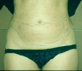 Photo - Tummy Tuck (old) 1 C.jpg
