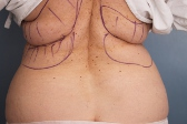 Photo - Tummy Tuck (old) 2 C.JPG