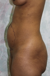 Photo - Tummy Tuck (old) 4 C.JPG